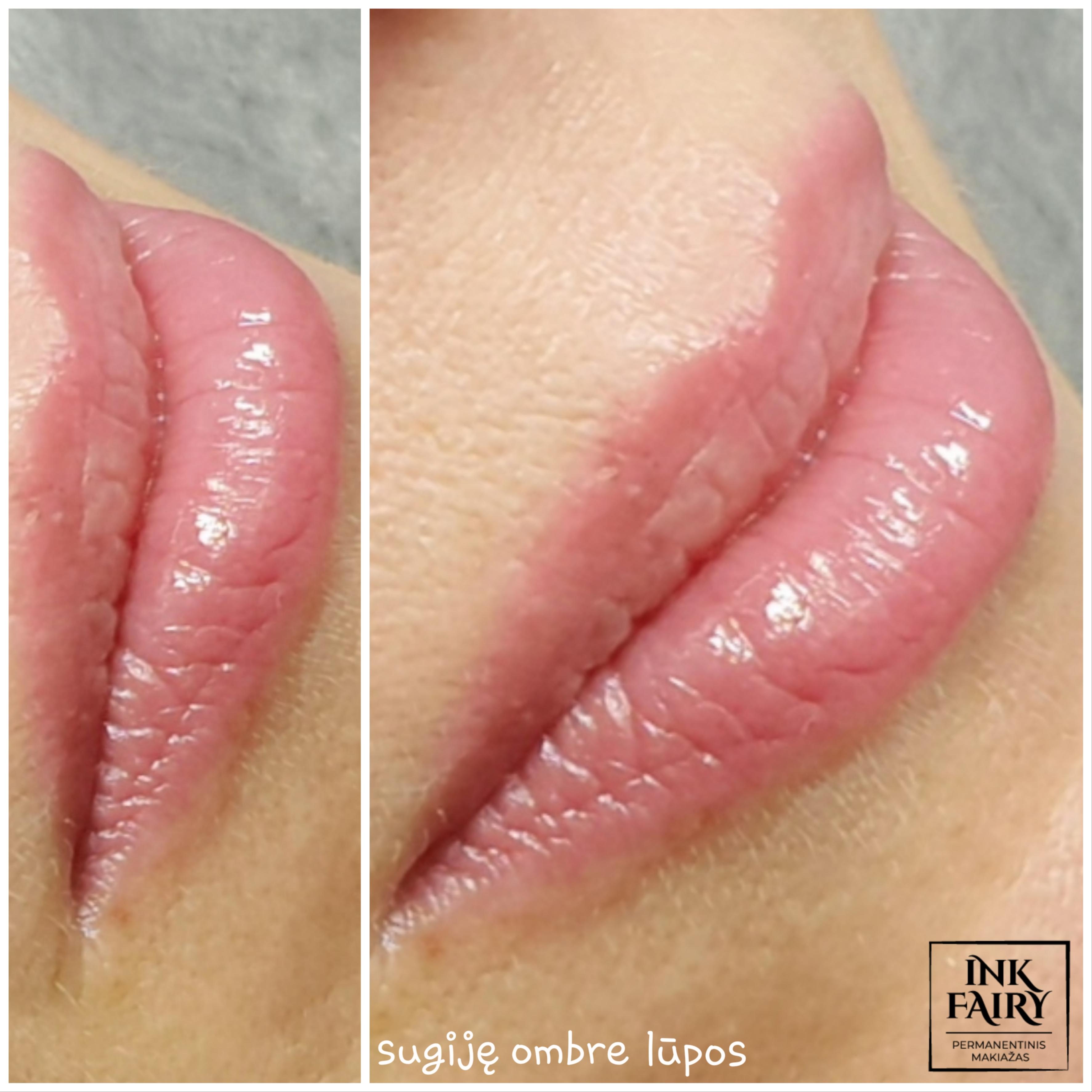 Sugijęs lūpų permanentinis makiažas