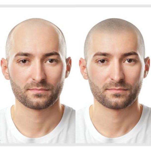 skalpo mikropigmentacija