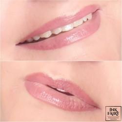 Lūpų permanentinis makiažas