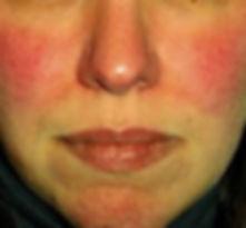 rosacea treatment bristol