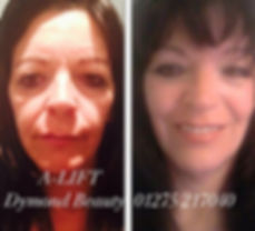 a-lift facial,face lift,look younger,face lift,fine lines,wrinles,tighten skin