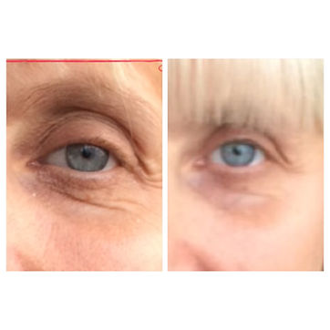 a-lift facial,face lift,look younger,reduce lines,tighten skin,remove bags,wrinkles,bristol salon