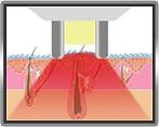 best ipl laser facial hair removal in bristol salon