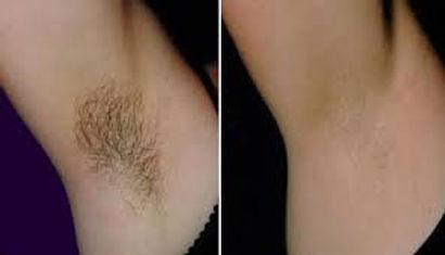 best ipl laser facial body hair removal in bristol