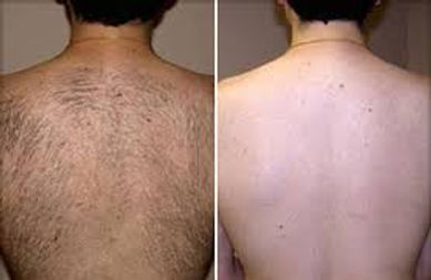 best ipl laser facial body hair removal in bristol salon