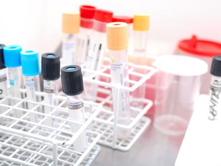 Проект: исследование рынка систем взятия крови в РФ по итогам 2019 г.