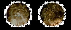 Alopecia-diffusa2_edited.png
