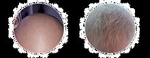 Alopecia-medicamentosa2_edited.png