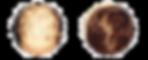 Alopecia-areata2_edited.png