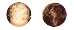 Alopecia-areata2_edited.png