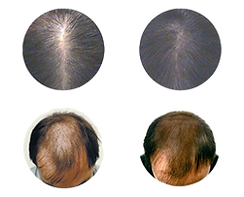 Alopecia-androgenetica2_edited.png