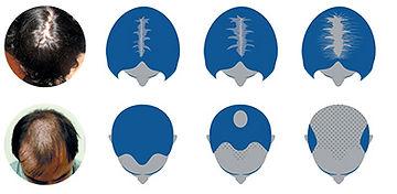 Alopecia-androgenetica.jpg