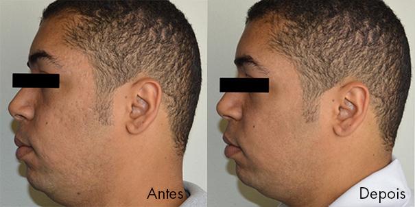 acne2antesedepois.jpg