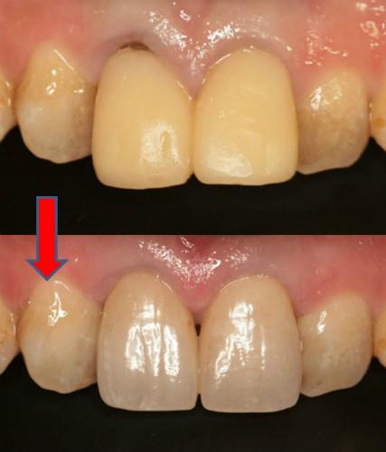 セラミック前歯