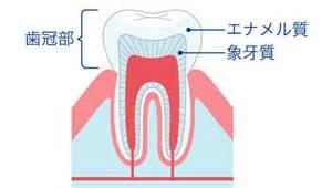 虫歯がしみる原因について