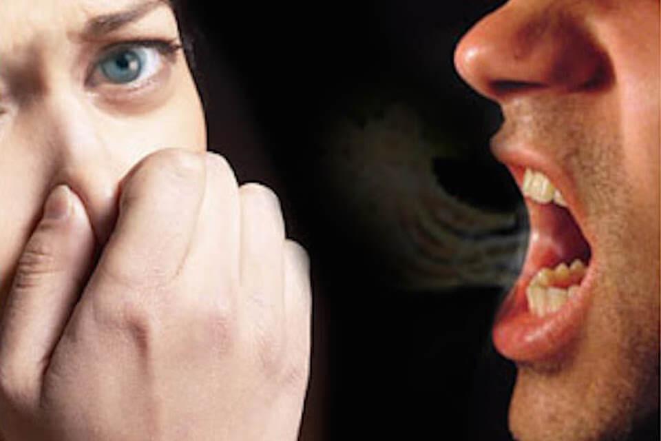 口臭のイメージ画像