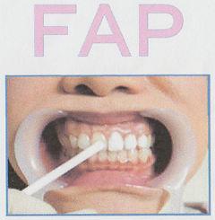 長崎の稲澤歯科医院のFAPホワイトニング