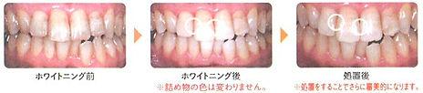 長崎・永崎駅前の稲澤歯科医院のホワイトニング注意事項(詰め物がある場合)