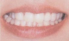長崎・長崎駅前の稲澤歯科医院のホワイトコート(歯のマニュキア)術後イメージ