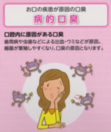 お口の疾患が原因の口臭(病的口臭)