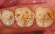 これが酸蝕歯です。