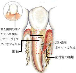 進行する歯周病イメージ画像