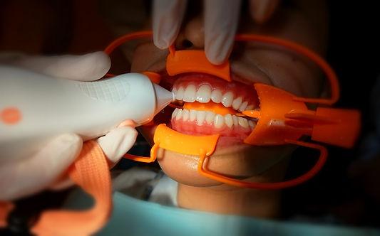 専用の機械で歯の色を測定
