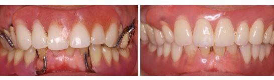 入れ歯、部分入れ歯の金具がみえる