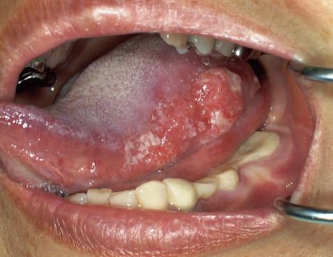 舌に癌ができた場合