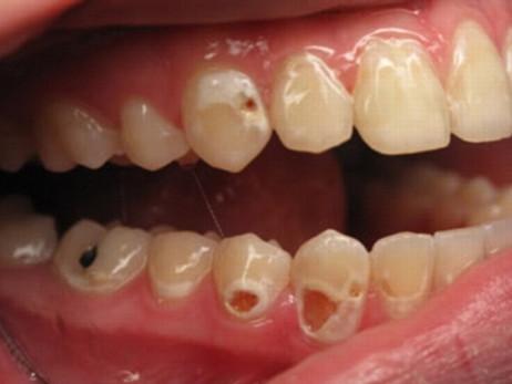歯と口の健康週間①