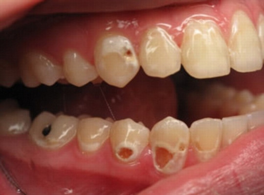 虫歯 白濁