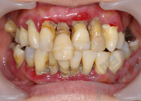 歯とお口の健康週間②