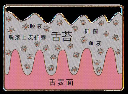 口臭の原因、舌苔(ぜったい)