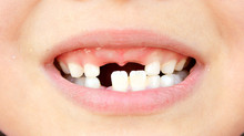 大人の歯がはえる時期
