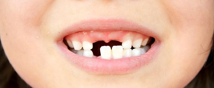 大人の歯がはえる前の乳歯の様子です。