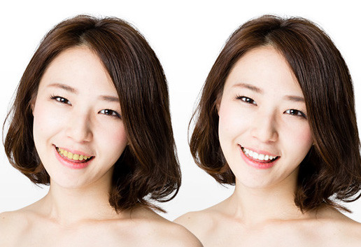 ホワイトニングで笑顔美人
