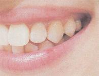 長崎・長崎駅前の稲澤歯科医院のホワイトコート(歯のマニュキア)術前イメージ