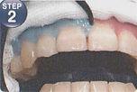 長崎・長崎駅前、稲澤歯科医院のオフィスホワイトニング・歯肉保護