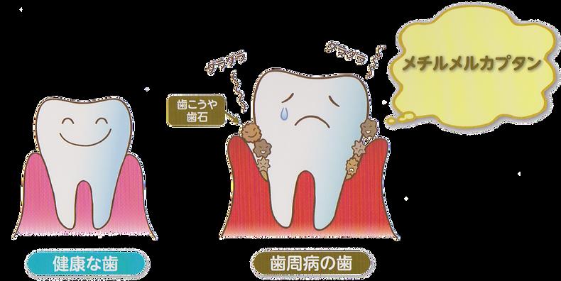 健康な歯、歯周病の歯