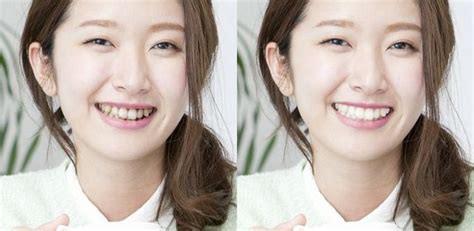 白い歯は印象も大きくかわります。