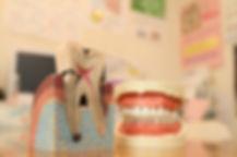 長崎・長崎駅前の稲澤歯科医院のインプラント治療のイメージ画像