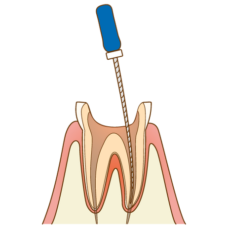 歯の神経をとるとどうなるの?