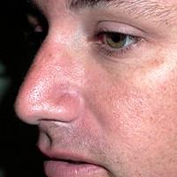 jb-nose_after.jpg