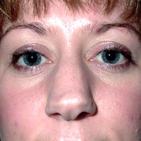 lady2_-before.jpg