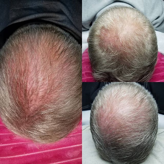 I love being able to help people regrow their own hair.. BTW is the best for skin and hair restorati