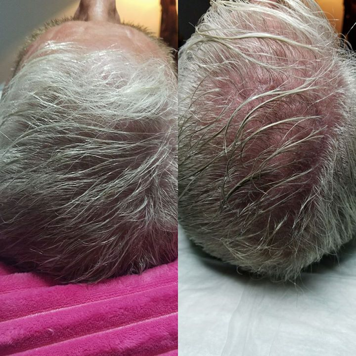 I really love my job and what I can do with stem cells and regarding people's hair back absolutely a