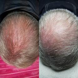 #hairrestoration #yes #growbabygrow #omnibio #hairstyles #stemcellsarebetterthan_#ma007 #microchanne