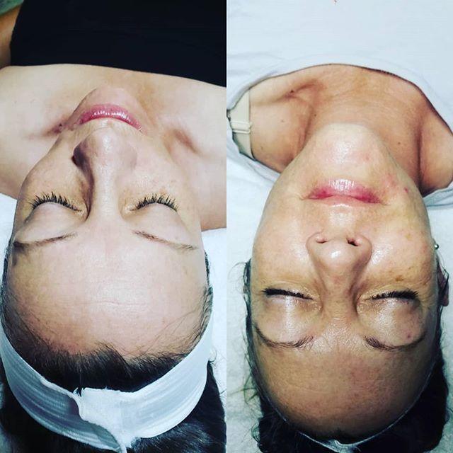 I love skin transformation