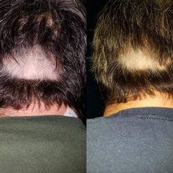 #😁 #hairgrow #growthfactor #growitback #fun