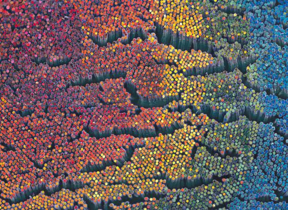 Collage of an intestinal brush border.